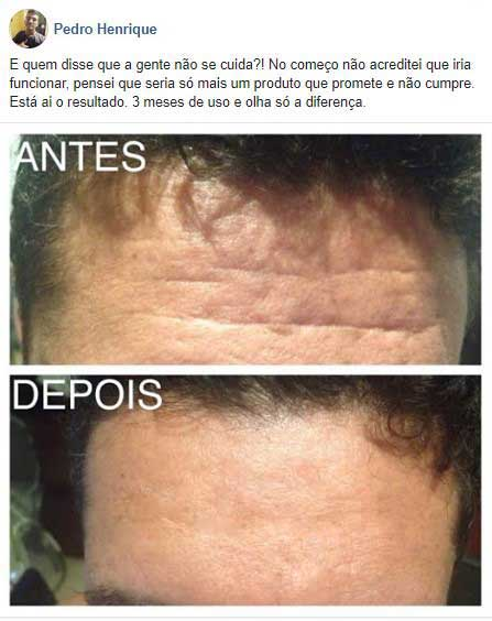 dermacaps antes depois